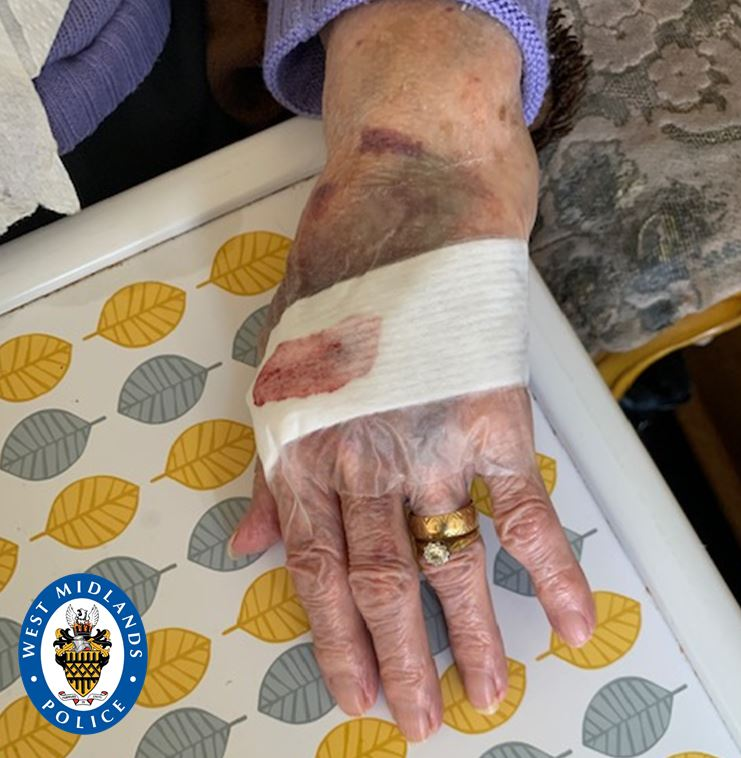 Police are searching for three heartless burglars who attacked a 92-year-old woman in her home
